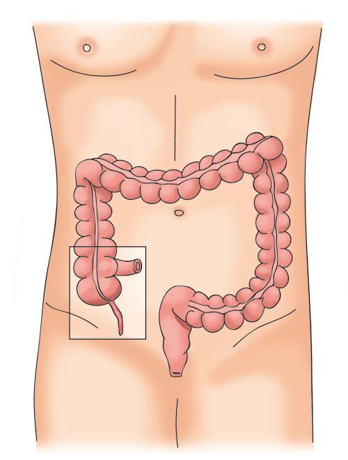 6.colon5-1g.jpg