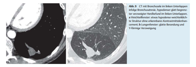 fleischner society glossary of terms for thoracic imaging pdf