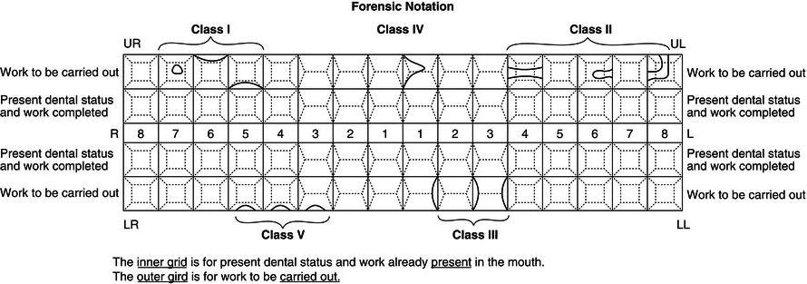 En Restorative Dentistry Pocket Dentistry